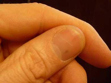 18-burred-needle